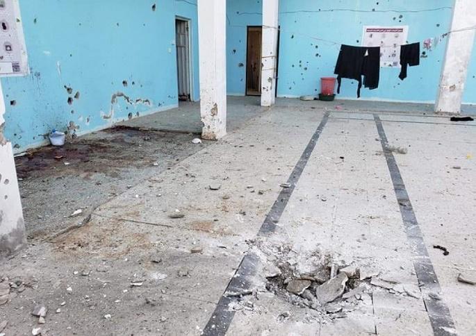 ميليشا الحوثي تقصف سجن تعز بصاروخ ومقتل 30 امرأة